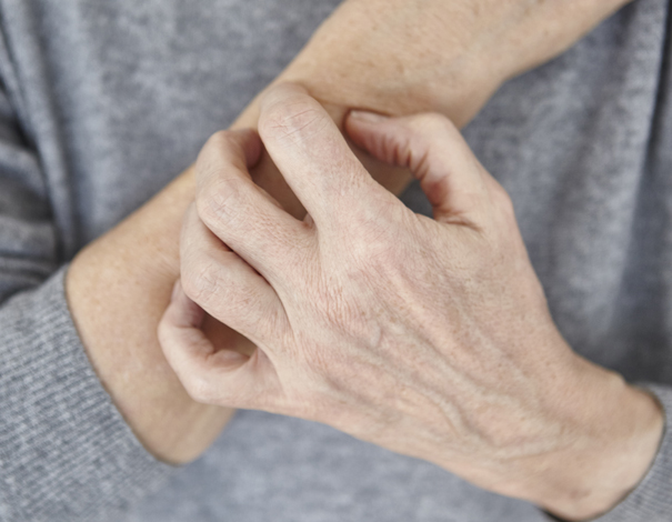 Old woman scratching hands with dry skin